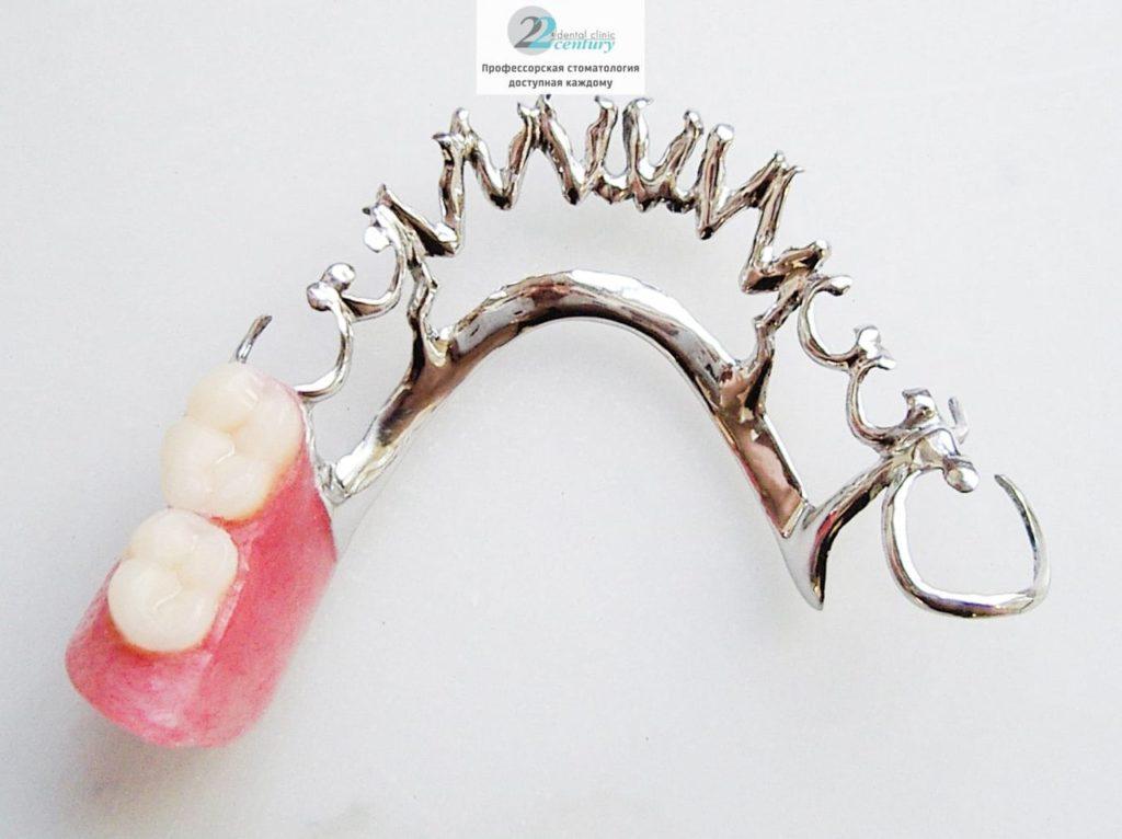 Что Такое Бюгельный Протез Зубов