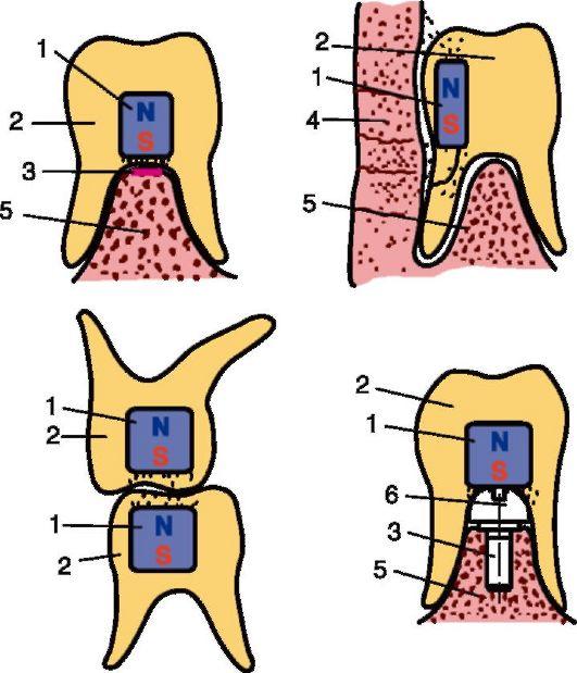 Методы фиксации протезов при полном отсутствии зубов