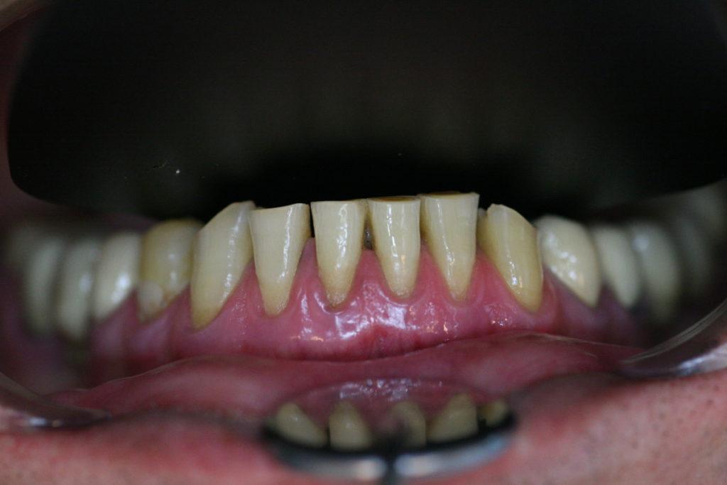 frontalnyj-uchastok-nizhnej-chelyusti-foto-s-kontrasterom