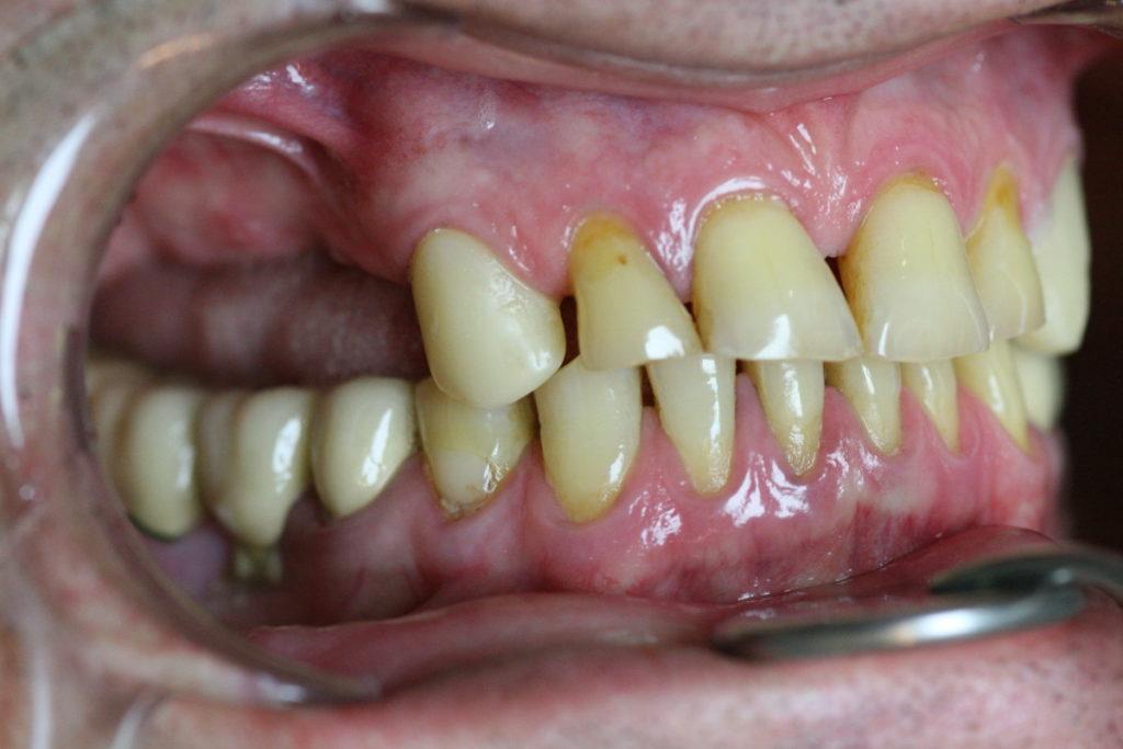 боковые зубы слева