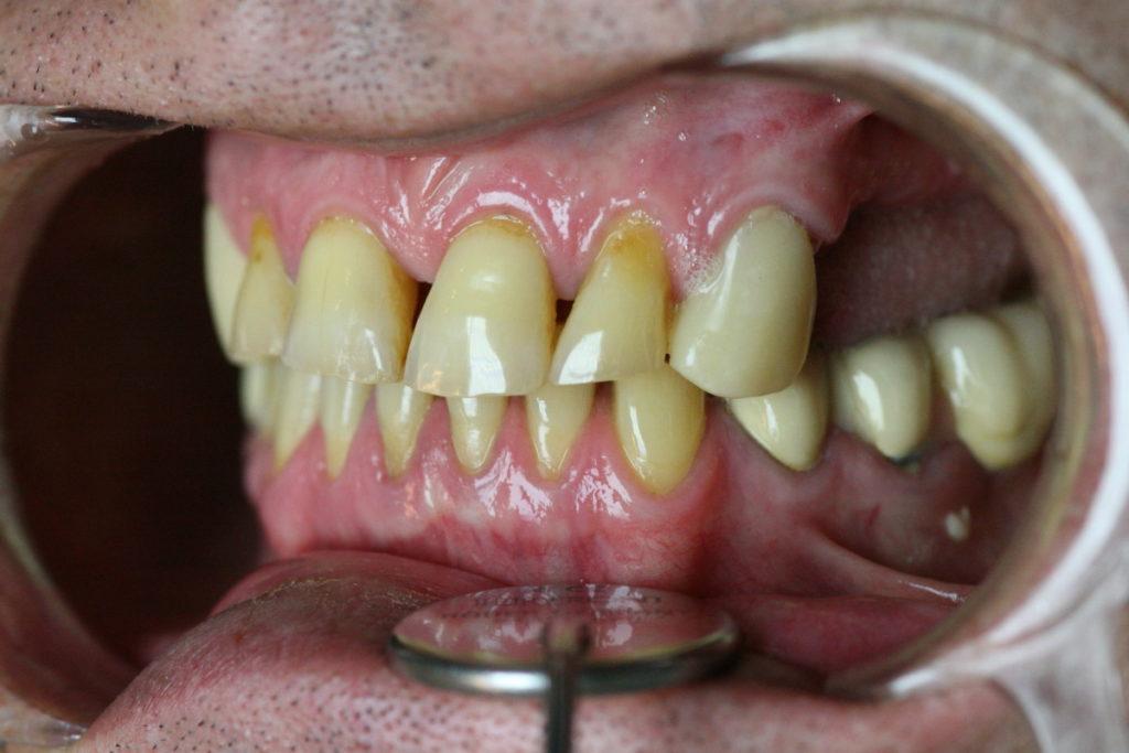 боковые зубы справа