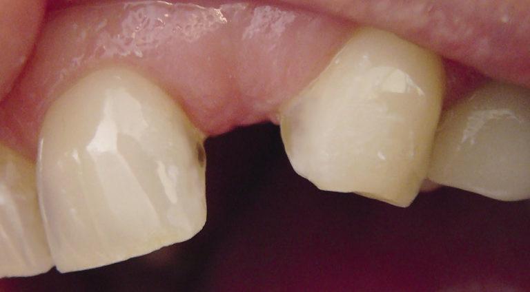 продаже восстановление зуба в перми кожно-венерологических диспансеров