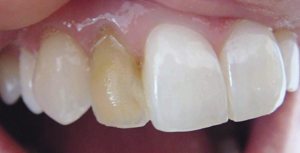 Оптика Зуба