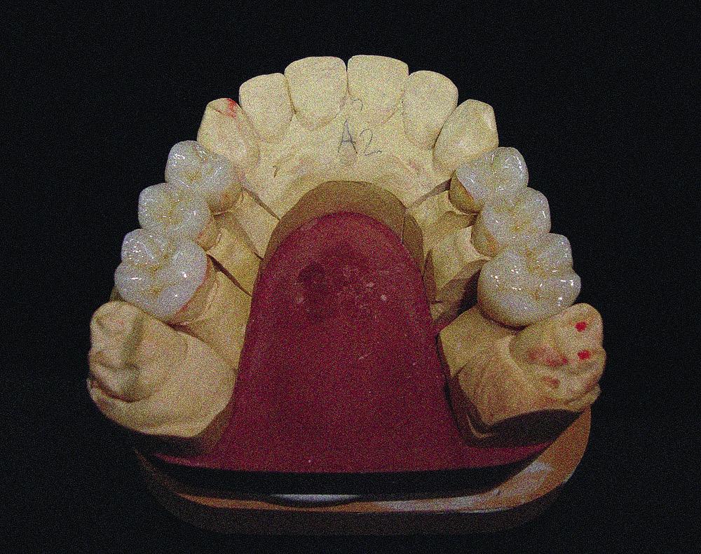 стоматологу ФОТОАППАРАТ