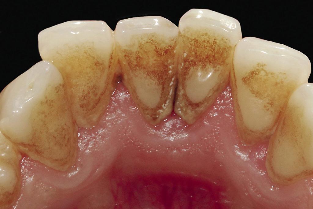 Рис. 4б. Небная поверхность фронтальной группы зубов нижней челюсти.