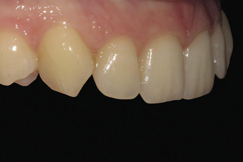 Рис. 5а. Снимок фронтальной группы зубов под углом 45 градусов. Вид справа.