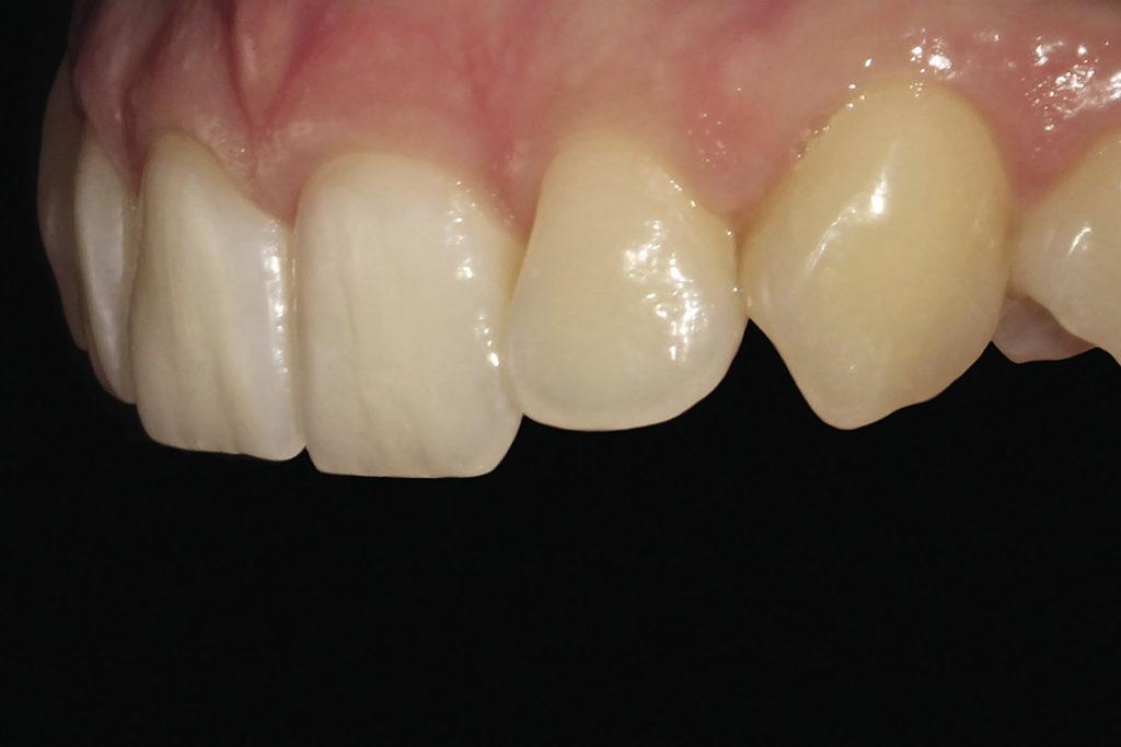 Рис. 5б. Снимок фронтальной группы зубов под углом 45 градусов. Вид слева.