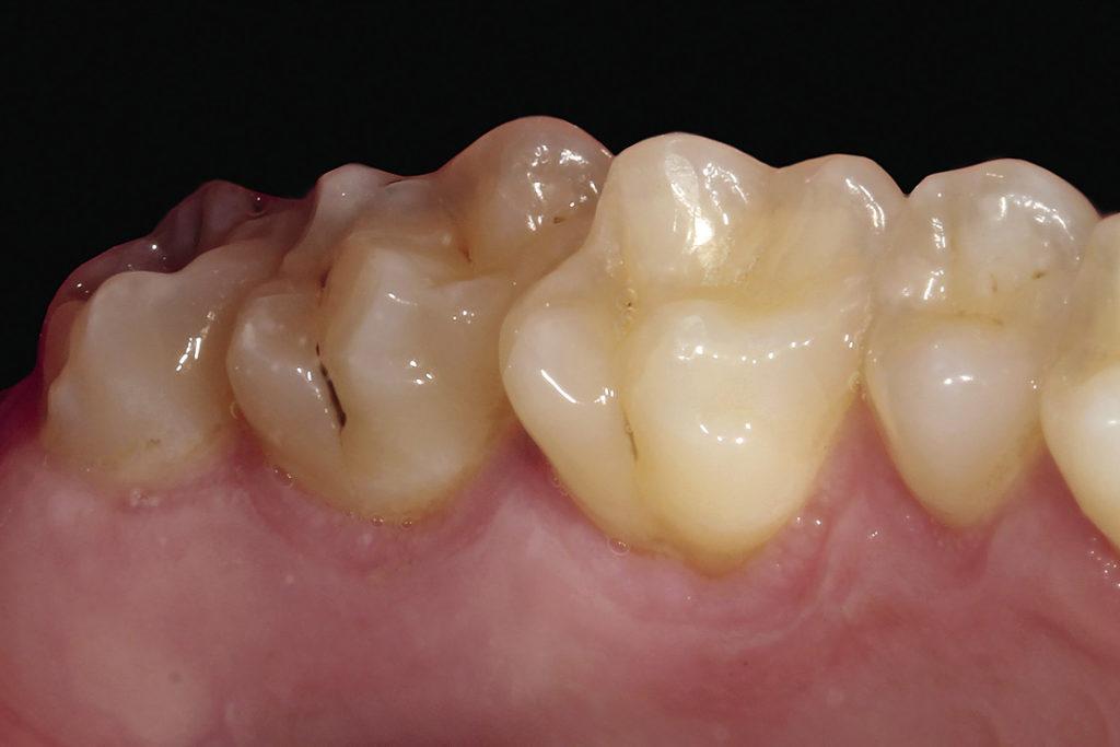 Рис. 6. Фотография небной поверхности боковой группы зубов.