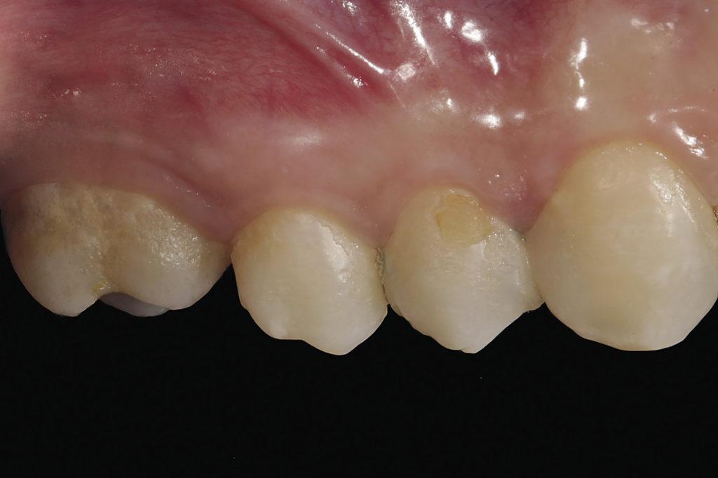 Рис. 7а. Фотография щечной поверхности боковой группы зубов.