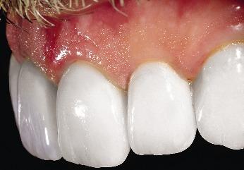 эстетика полости рта