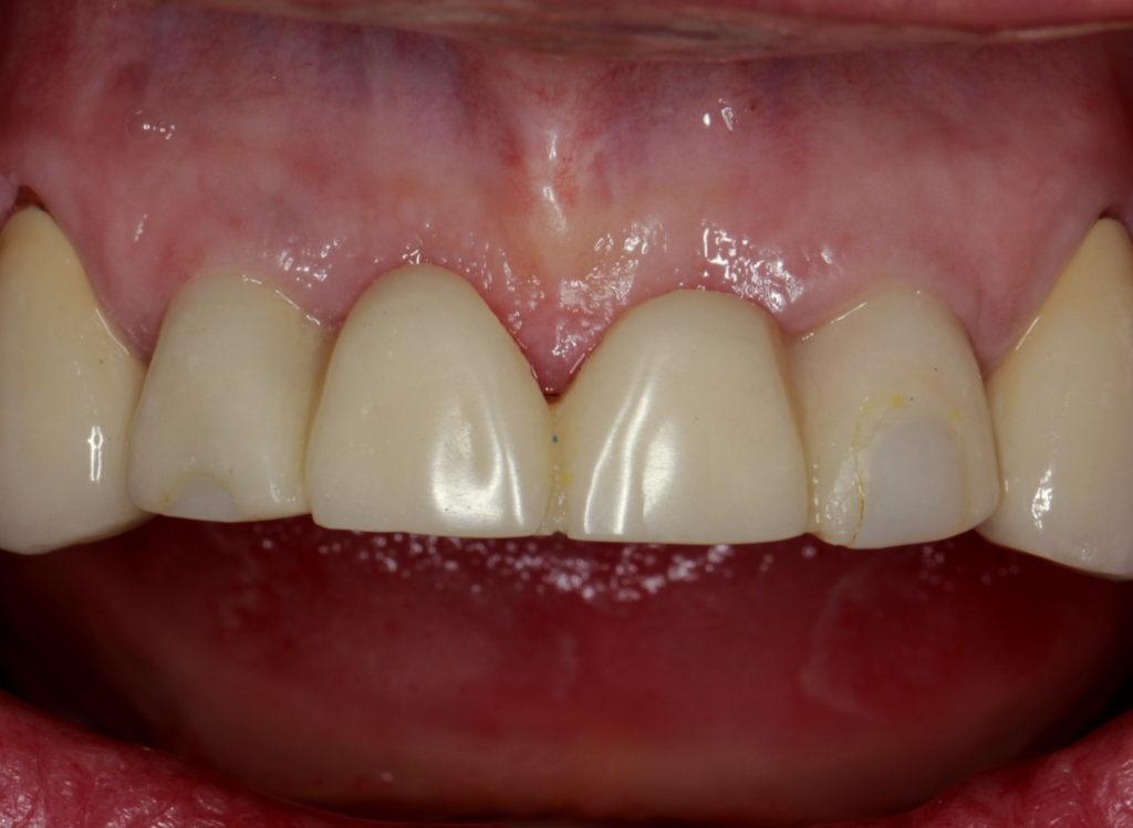 Рис. 21. Коррекция мостовидного протеза на этапе остеоинтеграции.