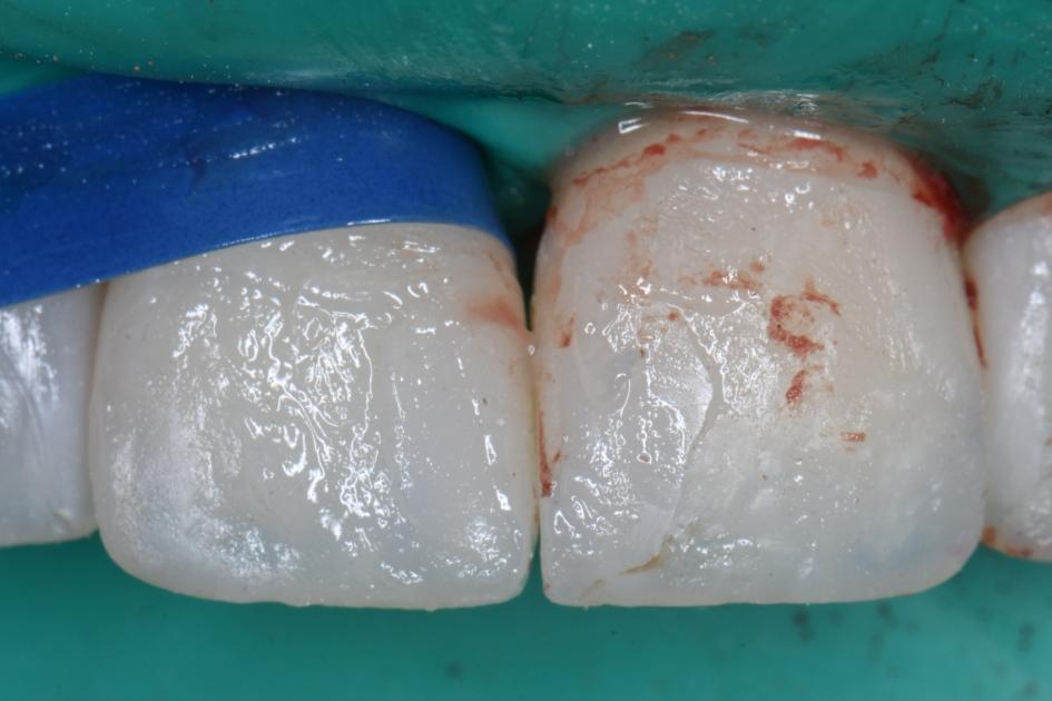 шлифовка между зубами