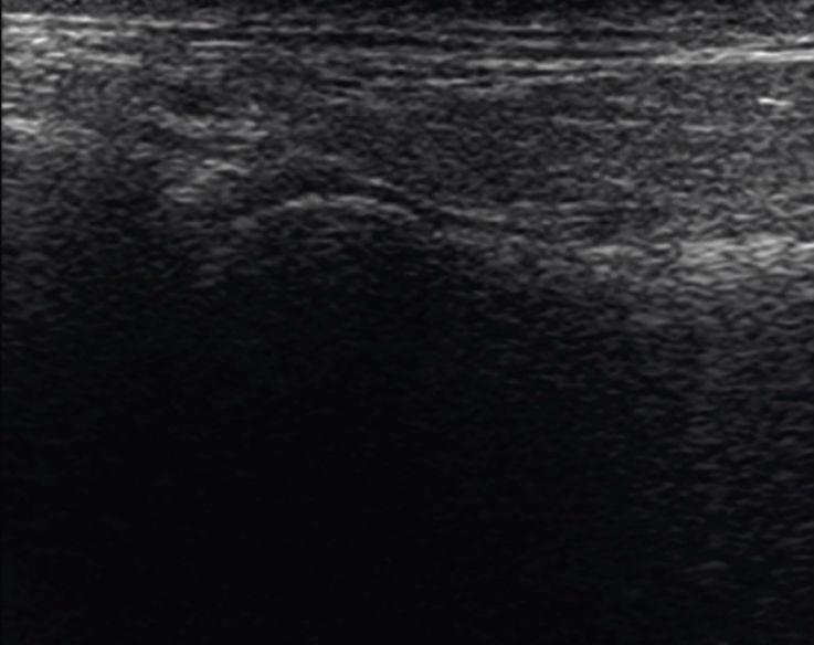 Рис. 5а. Фронтальный скан кзади от головки.