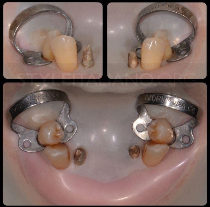 изоляция культи зуба