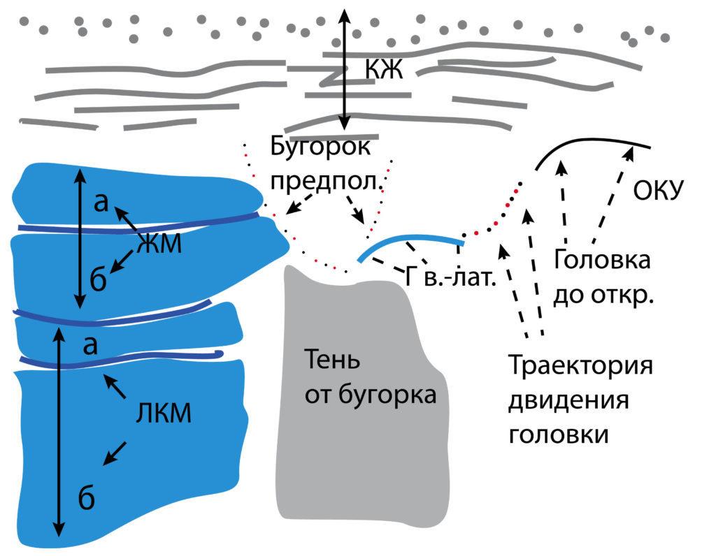 Рис. 8б. КЖ — кожа, подкожно-жировая клетчатка, поверхностная мышечно-апоневротическая система. ОКУ — околоушная слюнная железа. ЖМ — жевательная мышца: а — поверхностная часть, б — глубокая часть. Лат. КМ — латеральная крыловидная мышца: а — верхняя головка, б — нижняя головка. Д лат. — латеральный фрагмент суставного диска. Кап. лат. — латеральный фрагмент капсулы. КМП лат. — латеральное капсульно-мыщелковое пространство. Г в.-лат. — верхнелатеральный фрагмент головки мыщелкового отростка. Стрелка повторяет траекторию движения головки мыщелкового отростка при открывании рта.