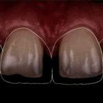 большая диастема между зубами