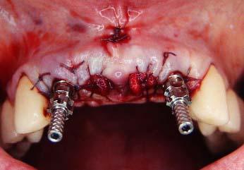 Костная ткань после удаления зуба