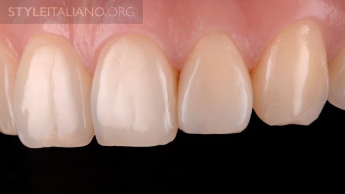 16-krasivye-zubki
