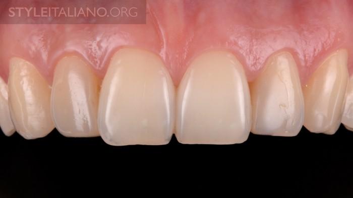 2-frontalnye-zuby