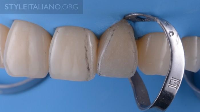 9-perehodnaya-liniya-zuba
