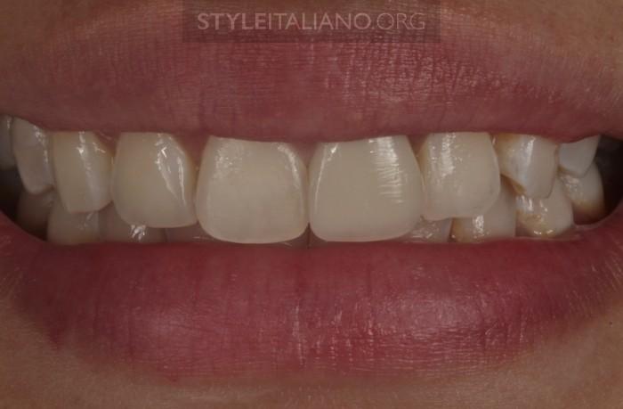 реставрация фронтальных зубов