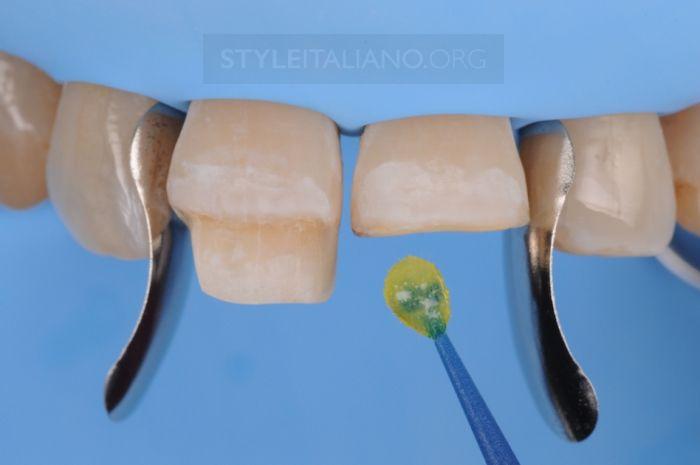 Адгезивная обработка зуба