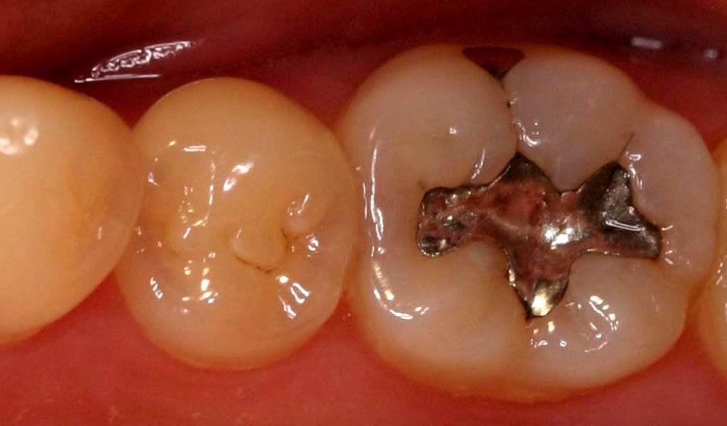 Амальгама стоматология