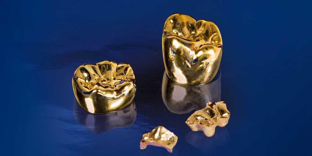 Благородные сплавы металлов в стоматологии ортопедической