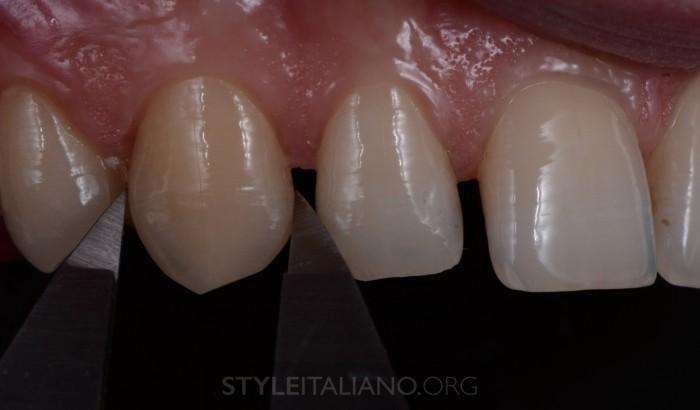 Измерение размеров зуба
