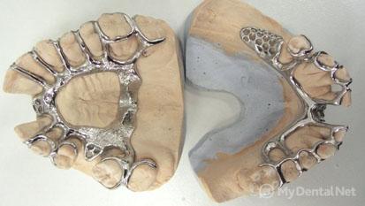 Кобальт хромовый сплав в стоматологии для каркаса
