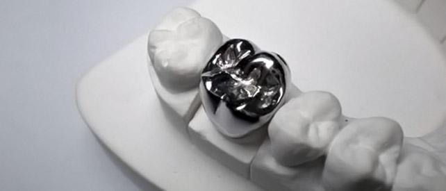 Неблагородные сплавы металлов в стоматологии ортопедической