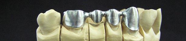 Никель хромовые сплавы каркас в стоматологии