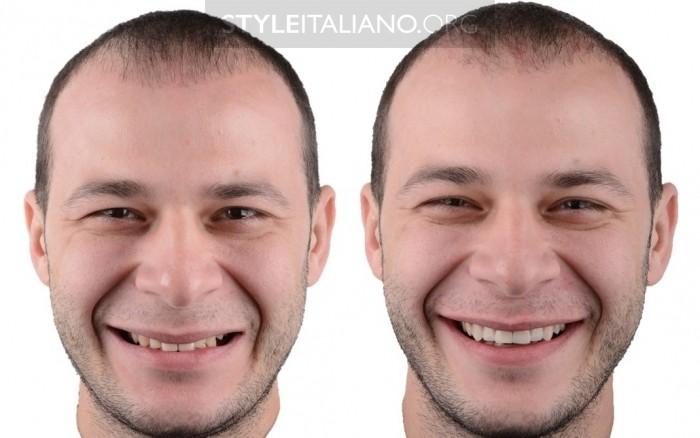 Новая улыбка