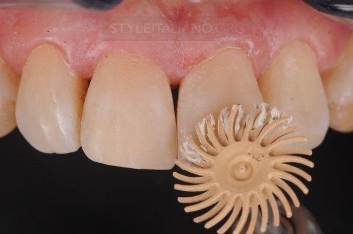 Шлифовка переднего зуба