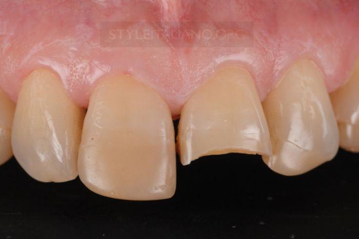 реставрации зуба одной массой