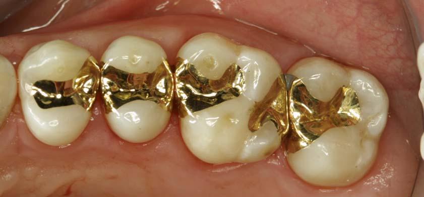 Сплав золота в стоматологии ортопедической