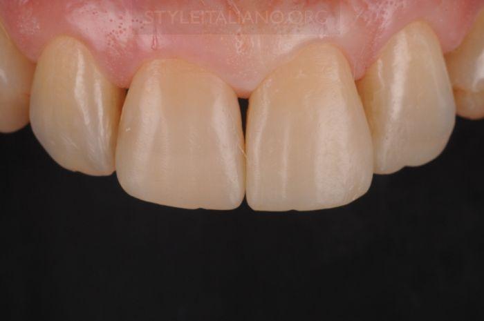 Восстановленные зубы