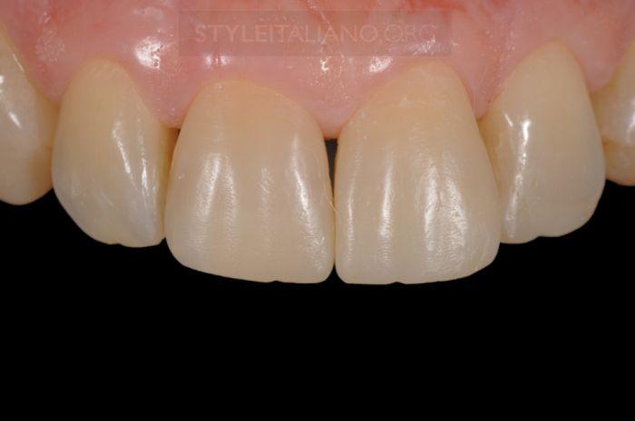 Зубы после полировки