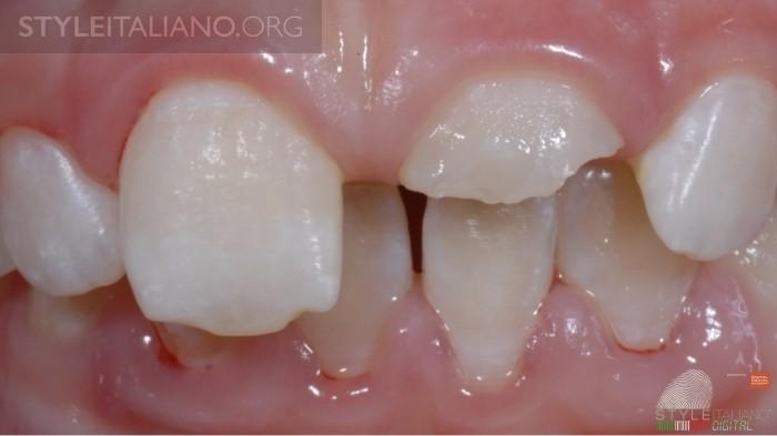 сломан зуб