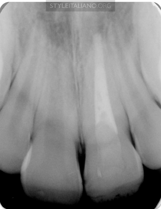 контрольная рентгенограмма