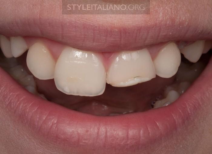 откол зуба