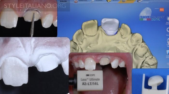 препарирование зуба