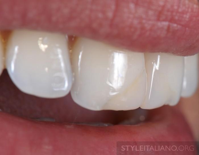 смена цвета зуба