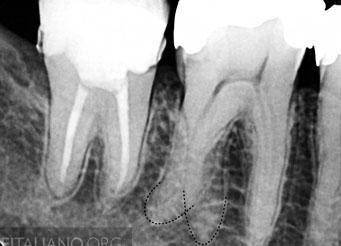 Морфология зубов и формирование доступа. Зубы верхней челюсти