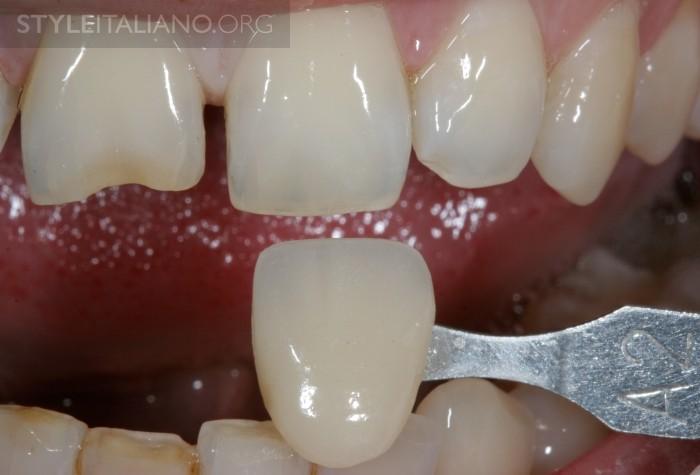 цвет зуба