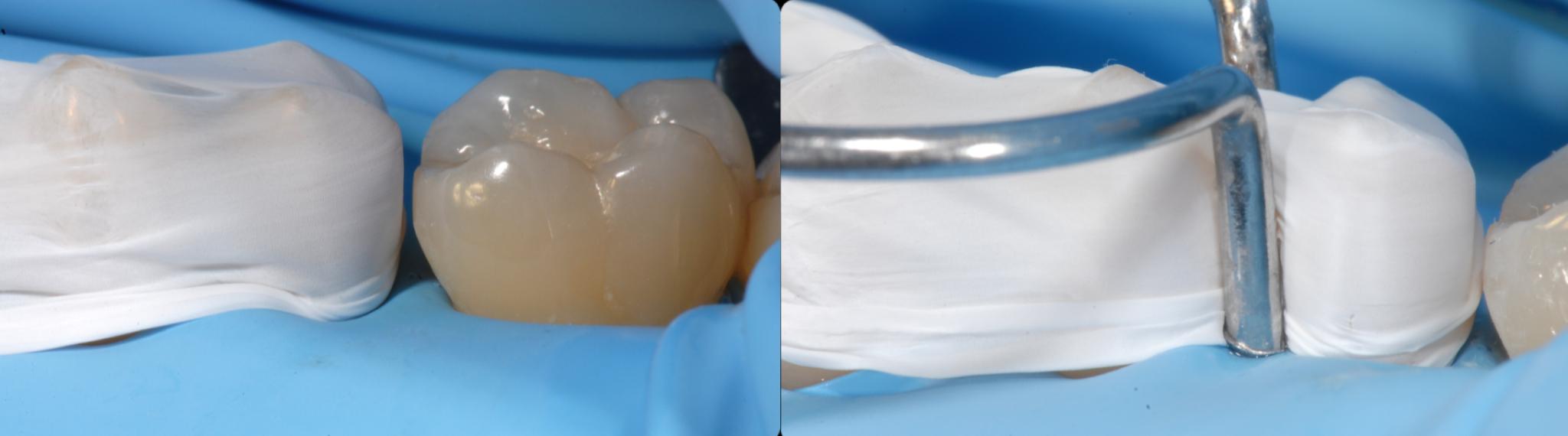 соседний зуб