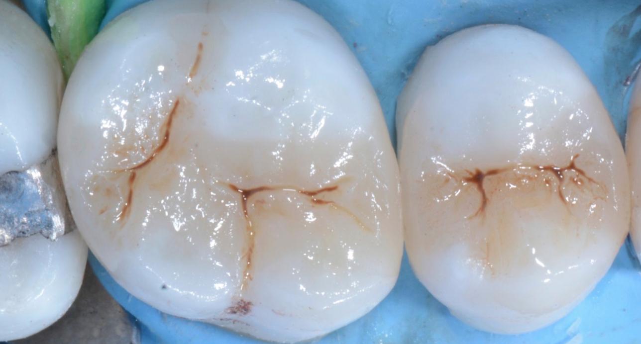 соседних зубов