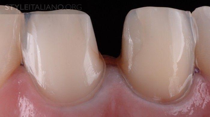 поддесневое препарирование зуба