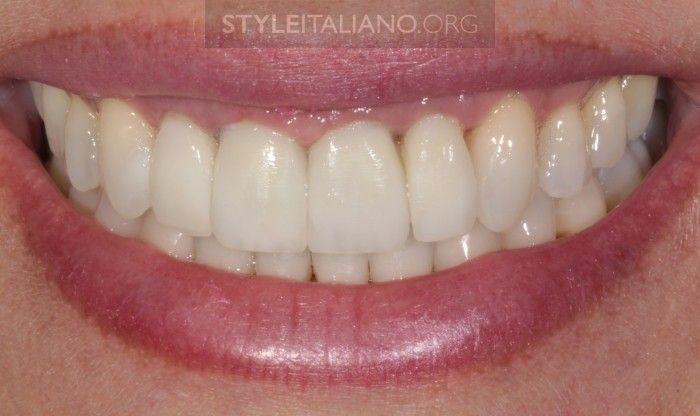Реставрация зубов она темнеет