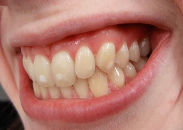 гипоплазия эмали постоянных зубов